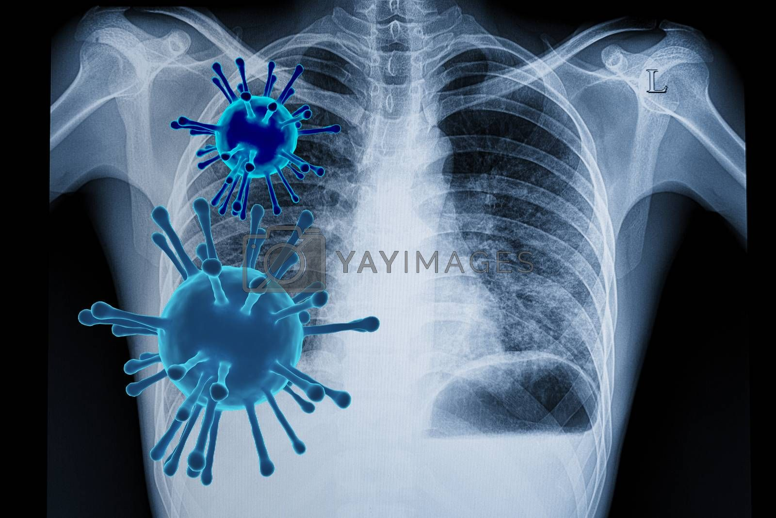 Visual illustration of coronavirus (covid-19) infection in the lungs with 3D rendered viral particles and a chest xray film of a patient with bilateral lower lungs pneumonia.