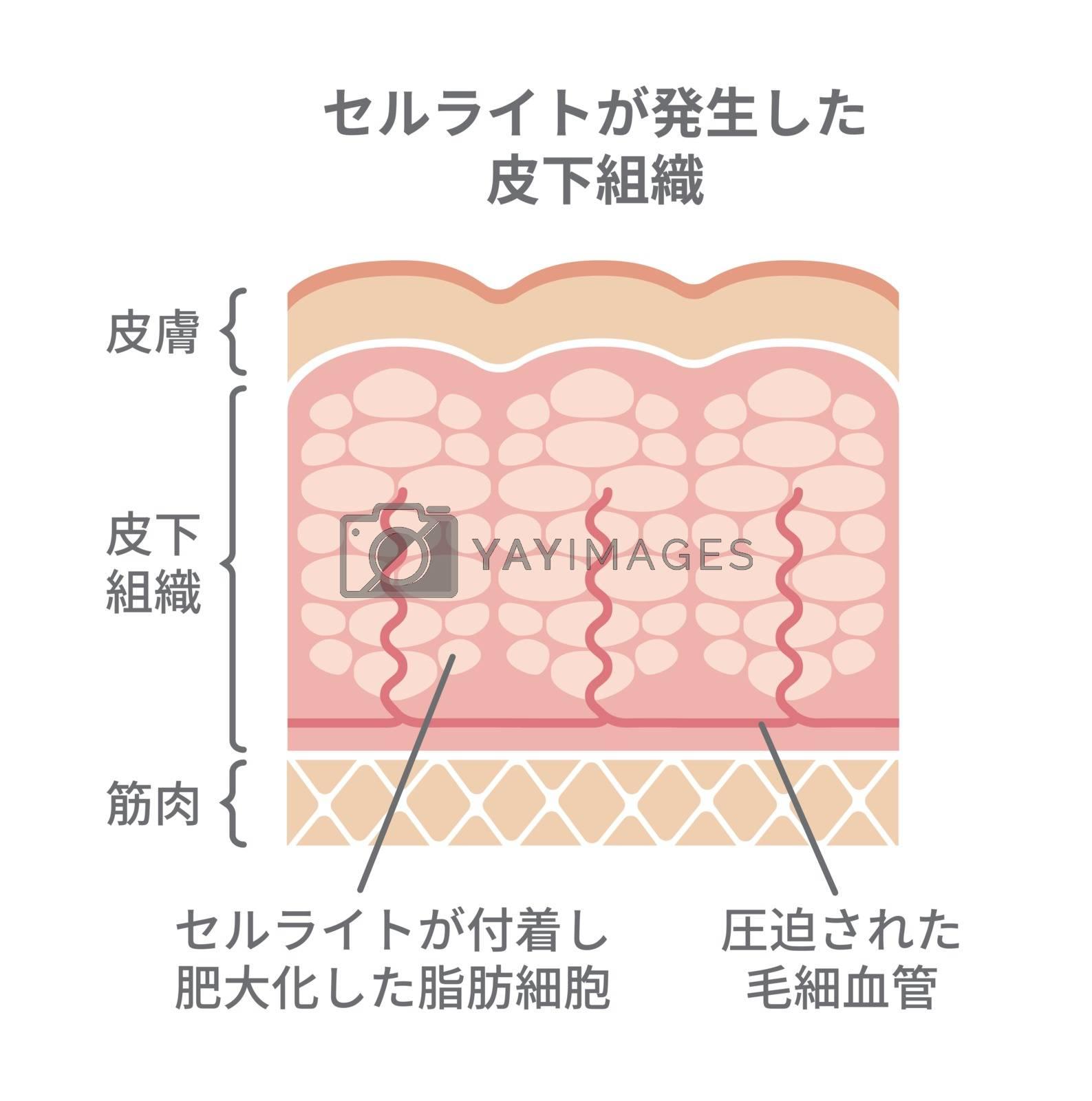 Cellulite's skin illustration