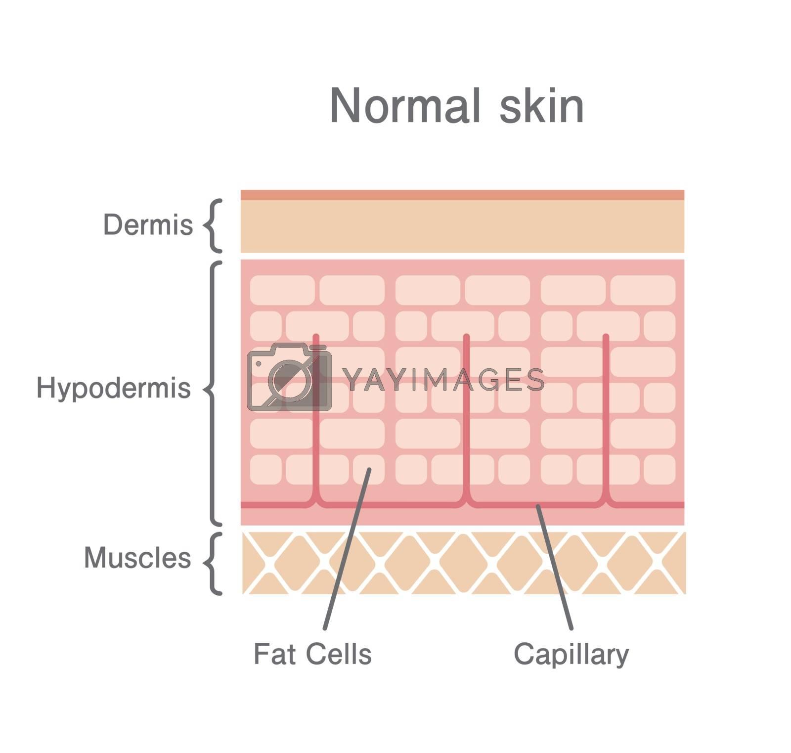 Normal skin illustration