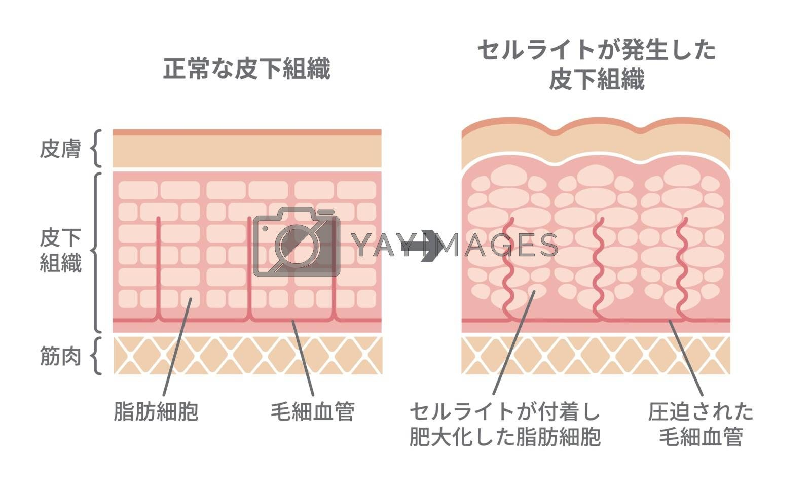 Royalty free image of Comparative illustration of normal skin and cellulite's skin by barks