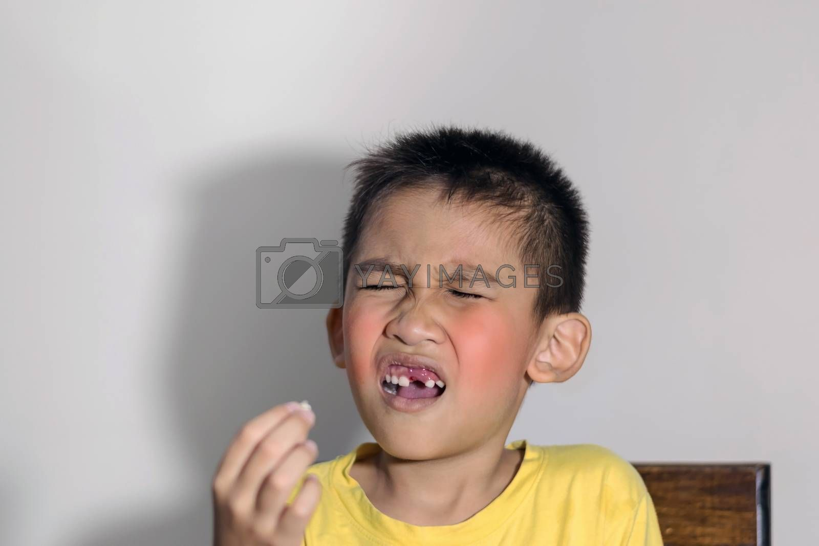 The boy cried out in pain as one of his teeth fell out and held it in his hand.