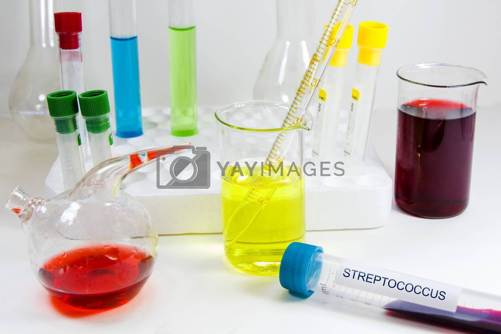 Streptococcus blood test tube, laboratory and chemical instruments, diagnoses and research, liquid chemical.