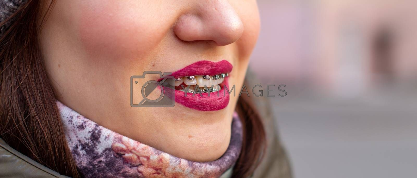 Brasket system in a girl's smiling mouth, macro photography of teeth, close-up of lips