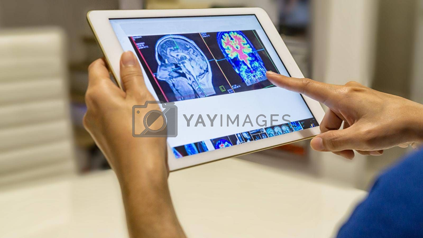 Closed up on Stethoscope and Tablet displaying brain activity scan laying on table, Medical workplace. Healthcare concept.