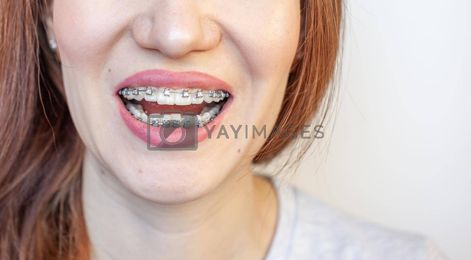 Royalty free image of Braces in the smiling mouth of a girl. Smooth teeth from braces. by AnatoliiFoto