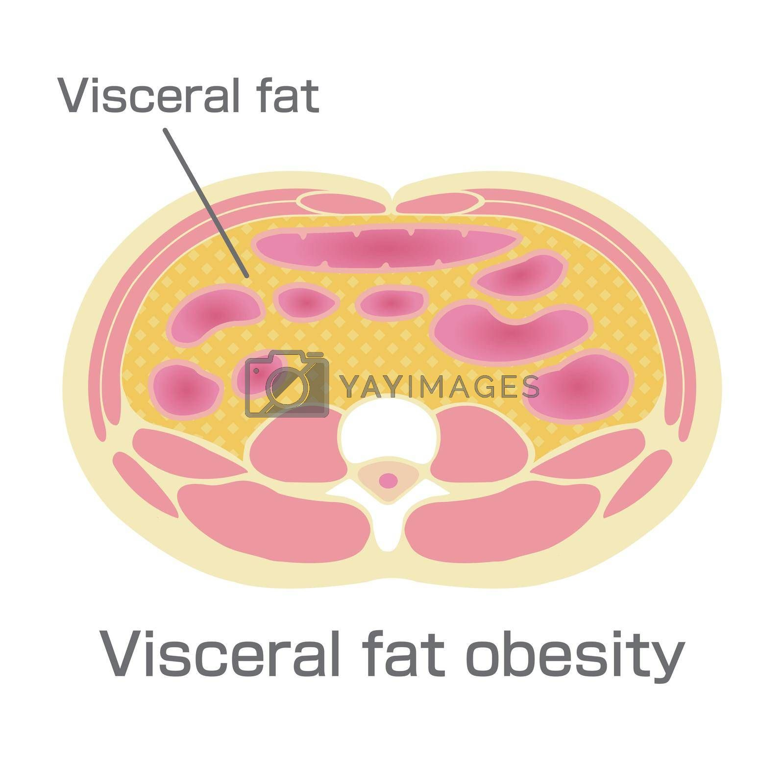 Type of obesity illustration (Japanese) . Abdominal sectional View (visceral fat )