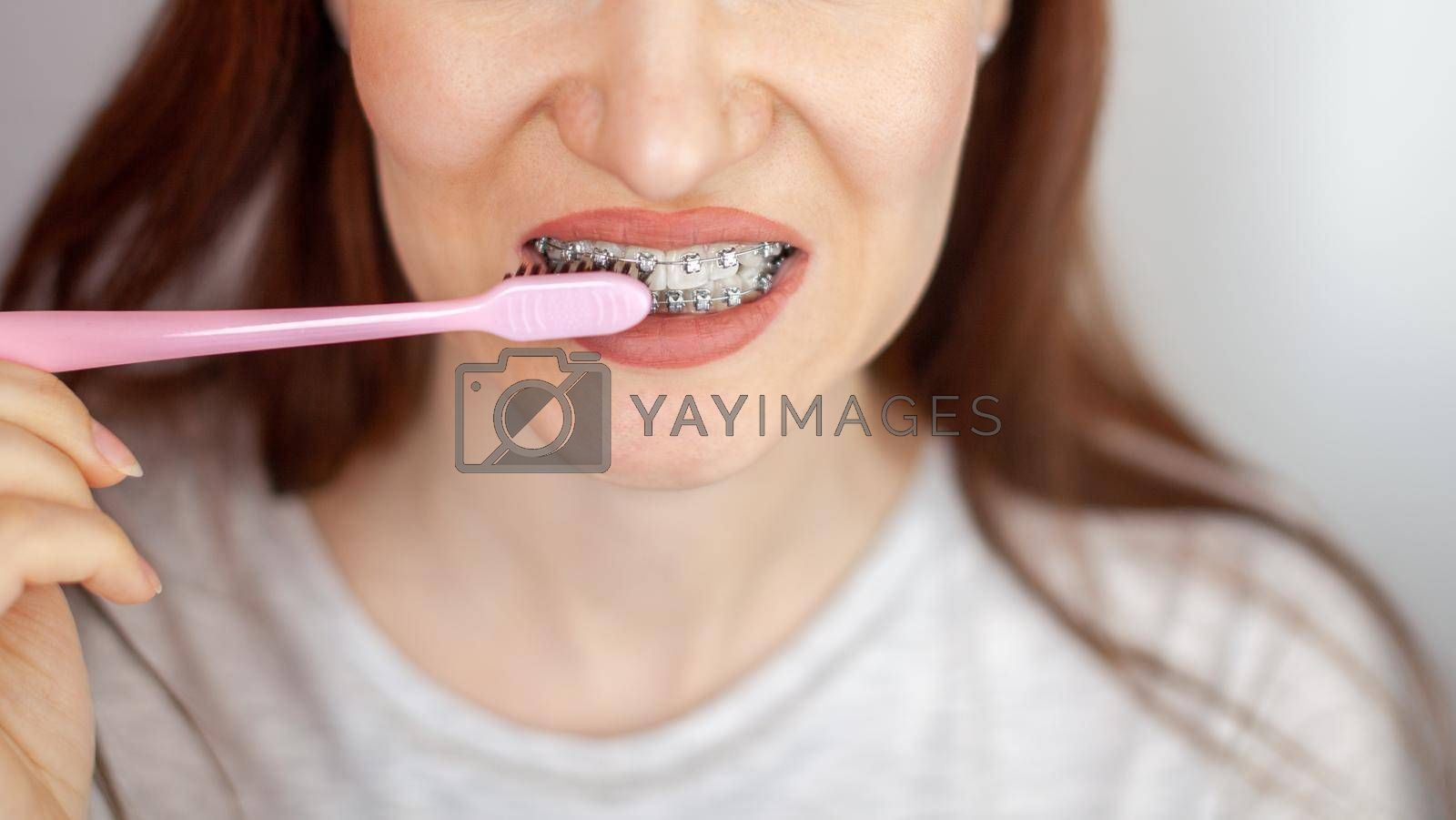 A girl with braces on her white teeth is brushing her teeth with a toothbrush. Straightening and dental hygiene. Dental care.