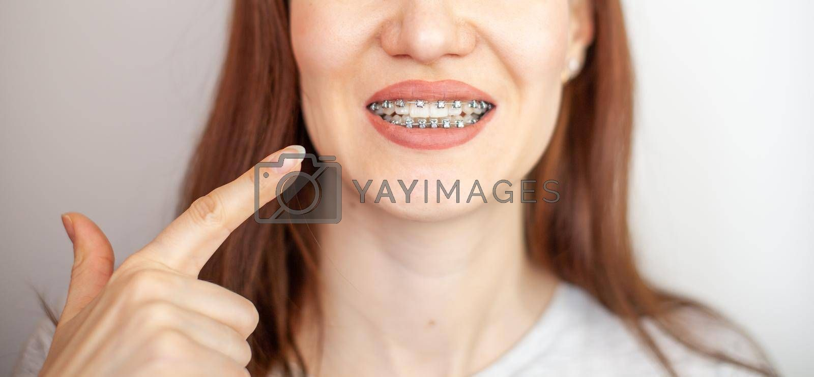 The girl points her finger at the even and white teeth with braces. Straightening your teeth with braces. Dental care.