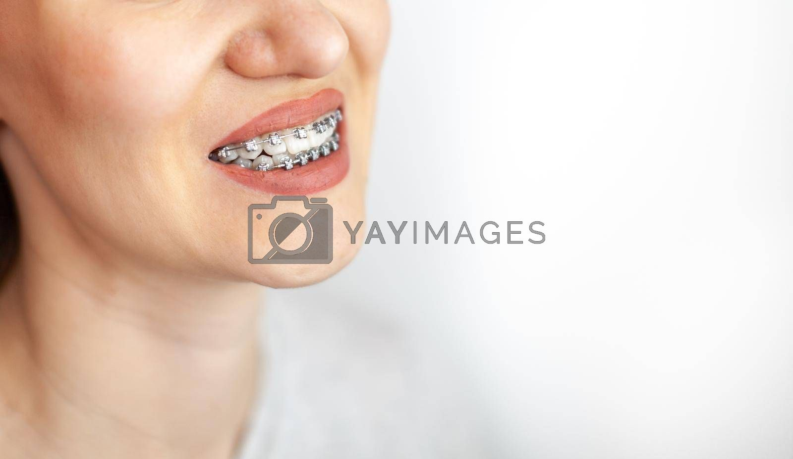 The smile of a young girl with braces on her white teeth. Teeth straightening. Malocclusion. Dental care.