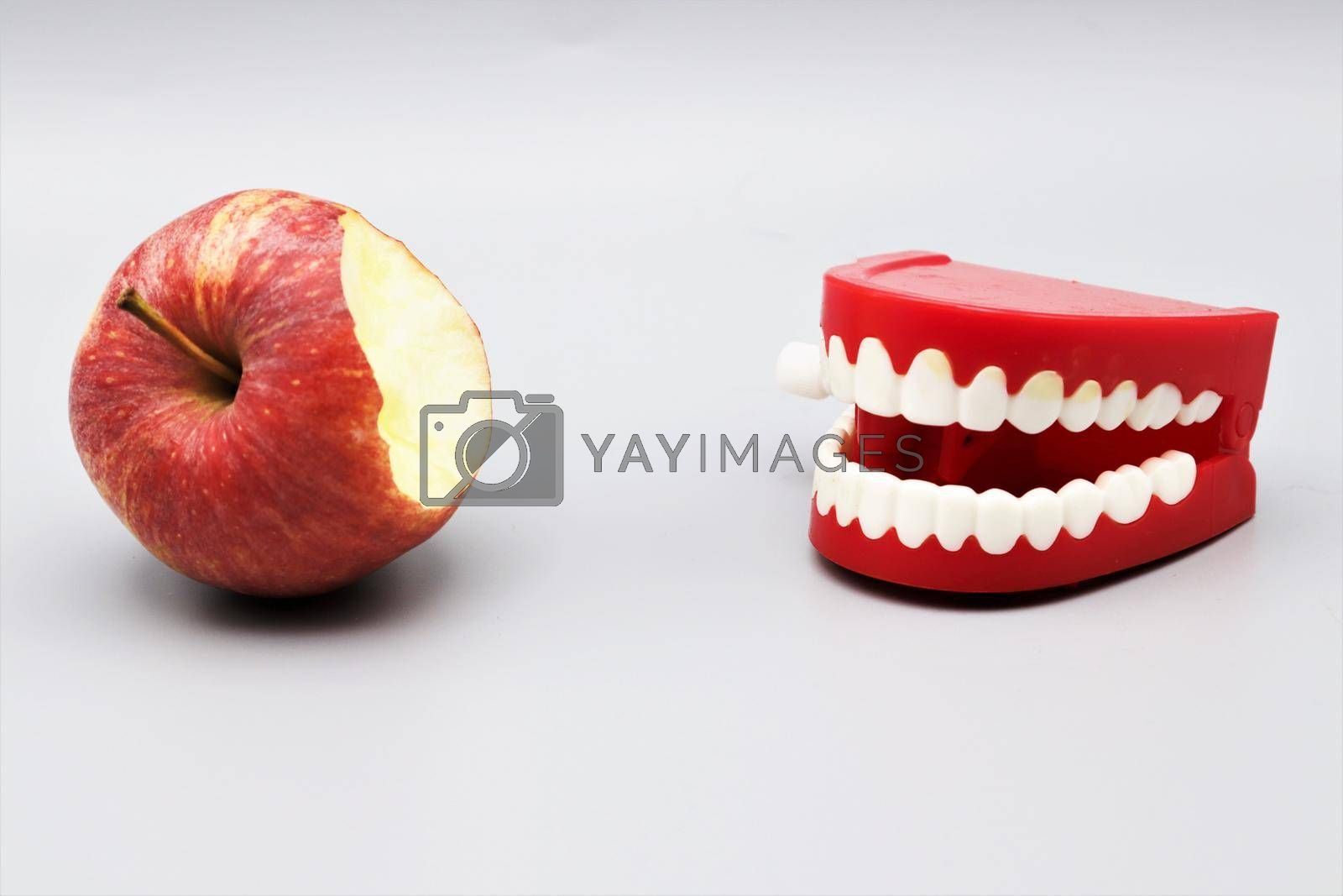 Chattering teeth takes a bite out of an apple, oral health