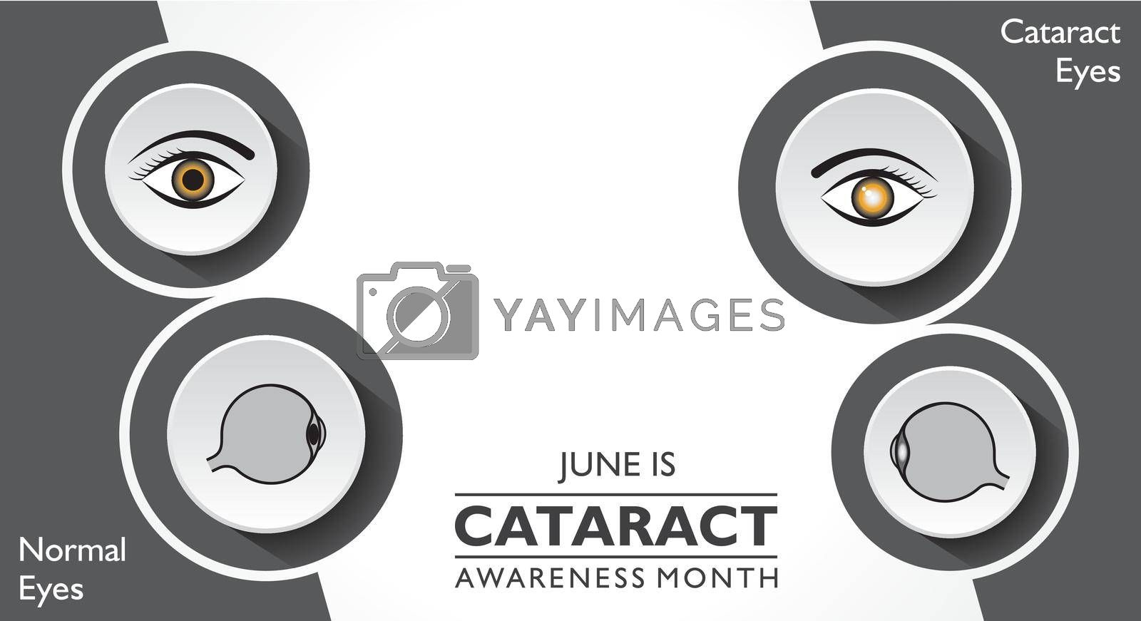 Royalty free image of Vector illustration of Cataract Awareness Month observed in June. by graphicsdunia4you