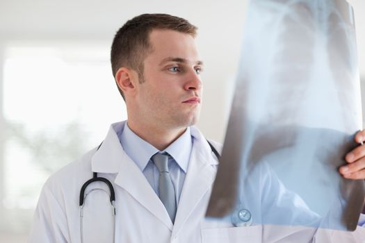 Doctor with x-ray photograph