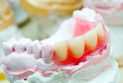 dental prosthetic
