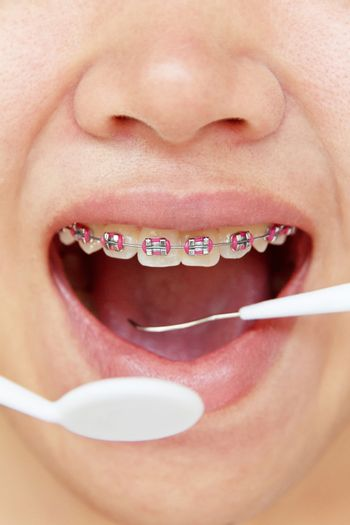 girl smiling with braces on teeth,dental concept