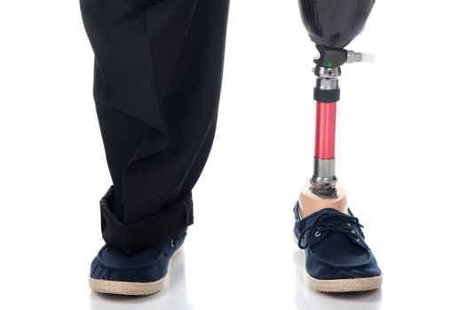 Prosthetic support