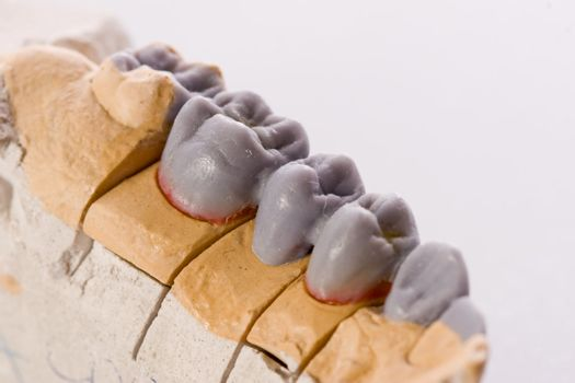 gypsum model of a human teeth on white background
