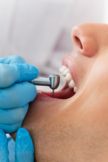 Close-up of dentist using dental drill on patient's teeth