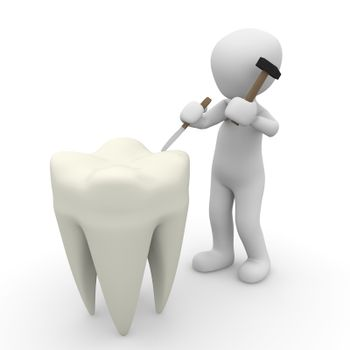 A dentist repaired the very large teeth with a hammer.