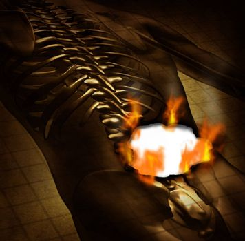 Human burning back pain and backache medical concept with a grunge old document of an upper torso body skeleton with the spine and vertebral column being burnt with fire flames and smoke as a health care symbol for spinal problems.