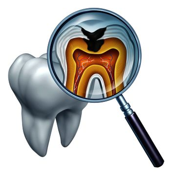 Tooth cavity close up and cavities symbol showing a magnifying glass with a cross section of a tooth anatomy in decay due to bacteria and acids in oral health care showing rotting and disease due to lack of brushing.