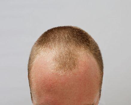 Balding White Man