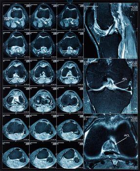 Magnetic resonance tomography (MRT) images of knee