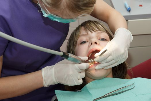 dentist drilled young girl tooth