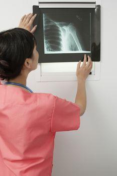 Doctor examining x-ray in hospital