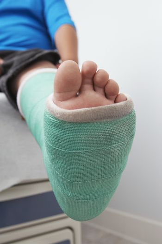 Detail shot of a boy's leg in plaster cast