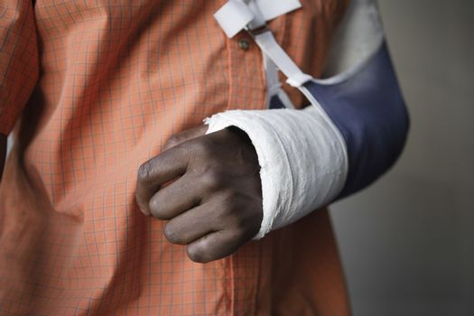 Man with broken arm close-up of cast