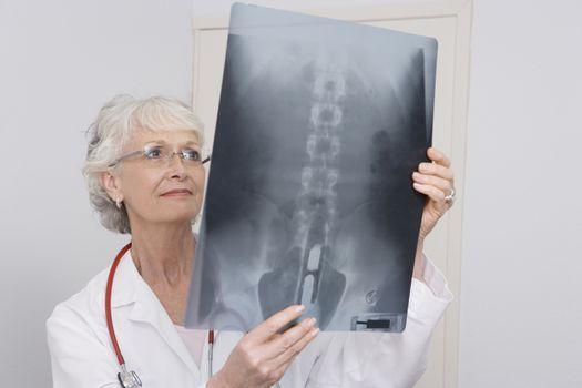 Senior medical practitioner examines xray