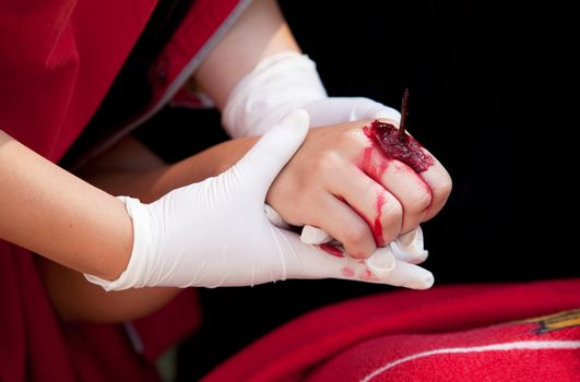 Treatment of hand injury