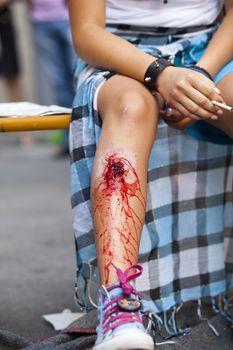 Serious injury on girl's leg