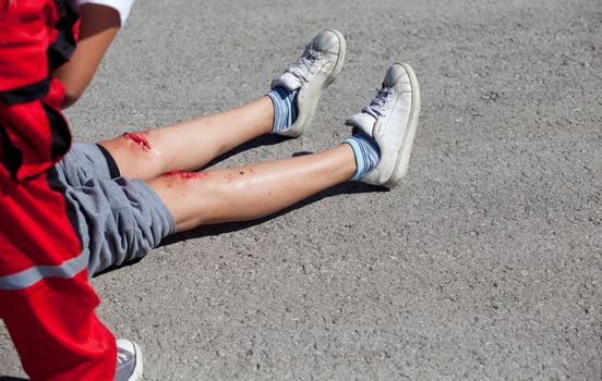 Serious injuries on girl's legs