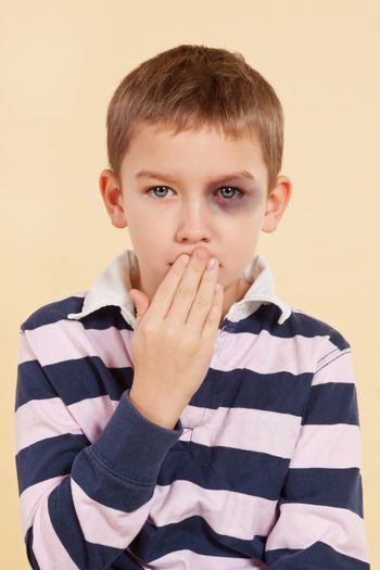 Young boy with black eye and hand over his mouth isolated. Domestic violence concept. Psst