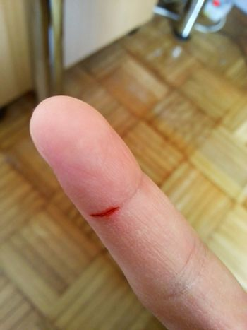 Small cut on a finger