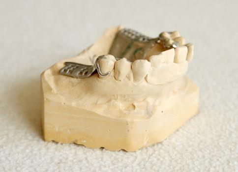 Metal framework for partial denture