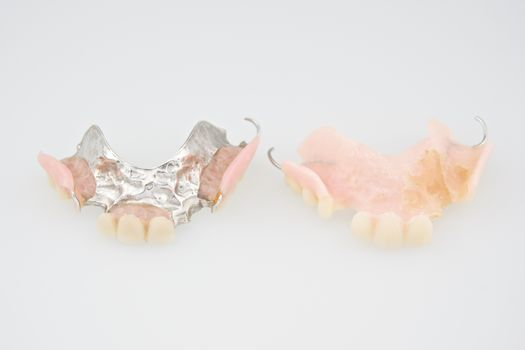 Denture made from plastic and metal