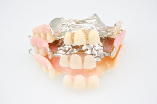 Stack of denture made from plastic and metal