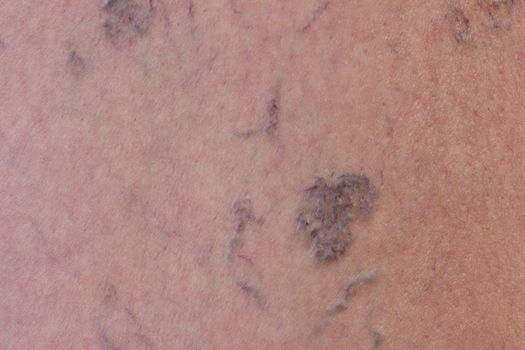Close-up of varicose veins