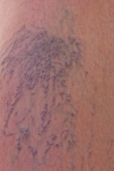 Close-up of dermis with varicose veins