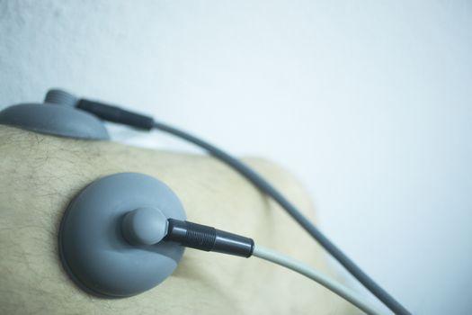 Electro stimulation used to treat pain