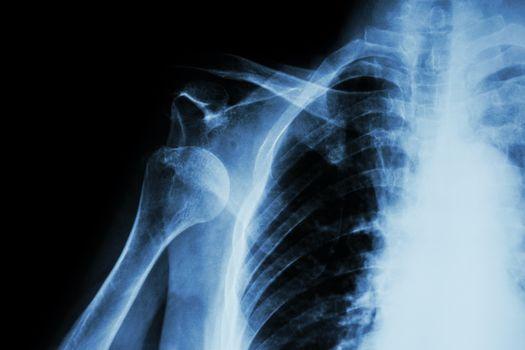 X-ray anterior shoulder dislocation