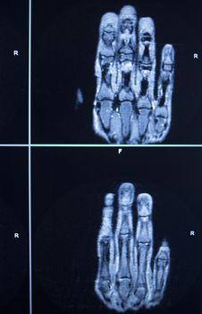 MRI scan test results hand finger injury