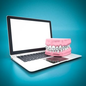 picture of dental braces on a blue background