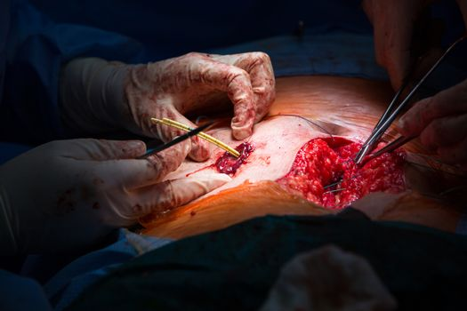 Surgery in a modern hospital