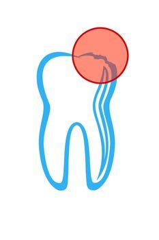 Vector illustration : Dentist symbol on a white background.