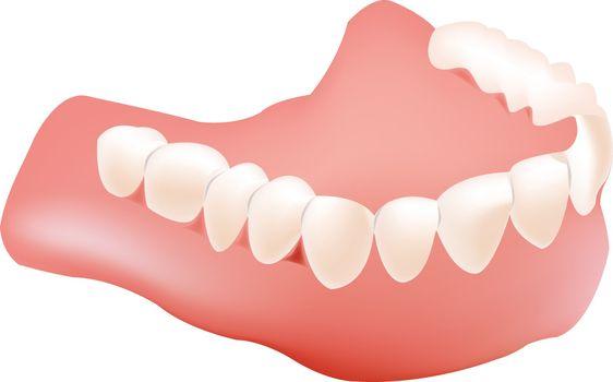 Dental implants dental imprint apparatus lower