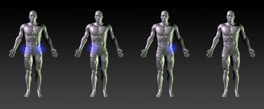 Hip Recovery or Rehabilitation with Blue Glow