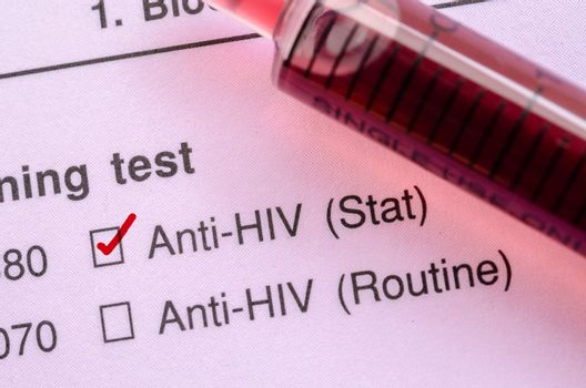 Red correct check mark with blood sample for HIV test.
